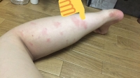 ゆう ブログ 蚊