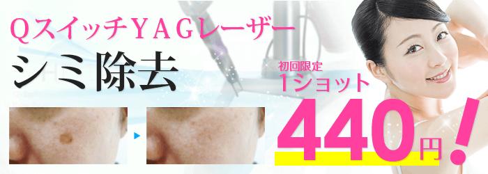 campaign_shimiブログ