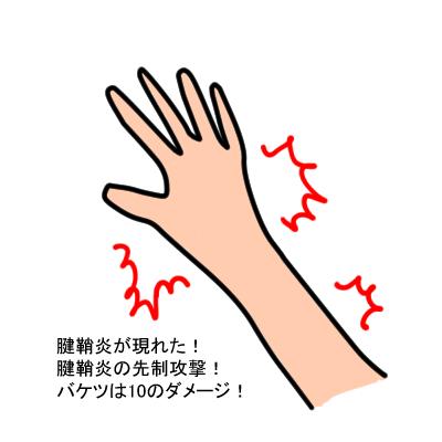腱鞘炎クエスト1