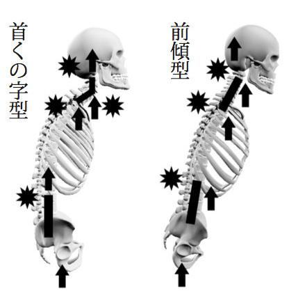 背骨衝撃、首背型