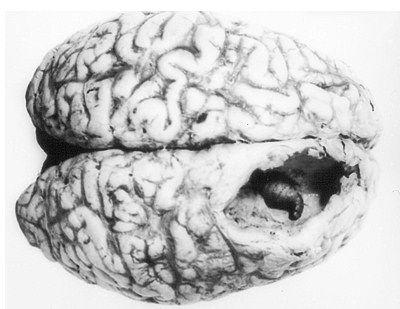 ▼キムチの寄生虫、有鈎嚢虫に巣食われた脳▼