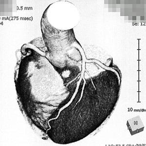 自分の心臓