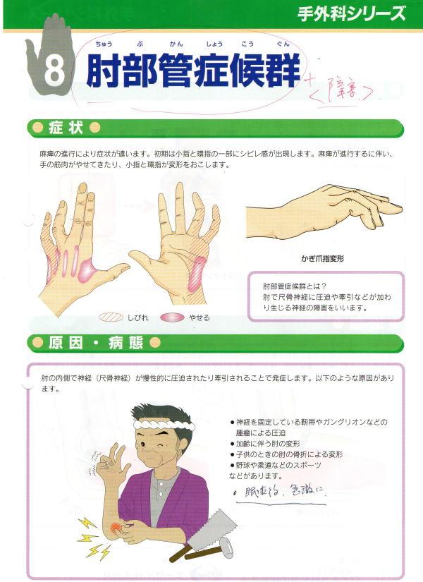 肘部管症候群パンフ①