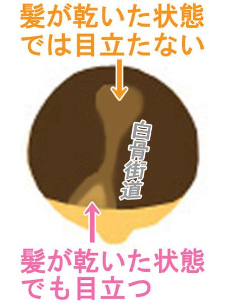 薄毛のイラスト