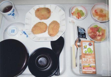 東都文京病院産後ケアの食事コロッケ