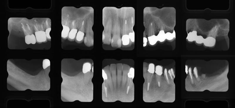 保存予定歯の治療終了時