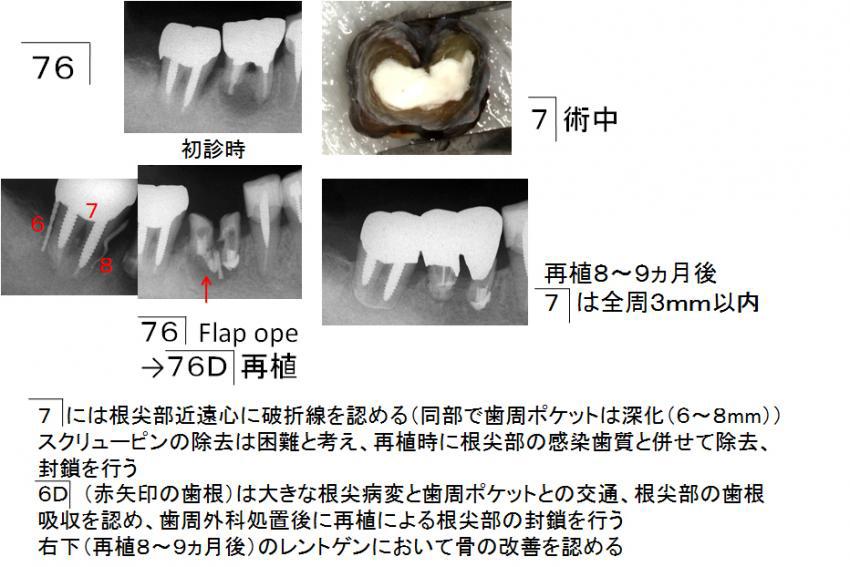 右下奥(76)の治療経過
