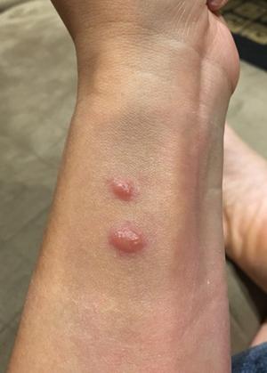mosquitobite1802.jpg