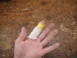 P9190012 指のけが