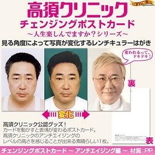 高須クリニック チェンジングポストカード 〜 アンチエイジング編 〜